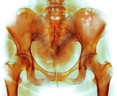 Bone Marrow Cancer Art Print by Mike Devlin