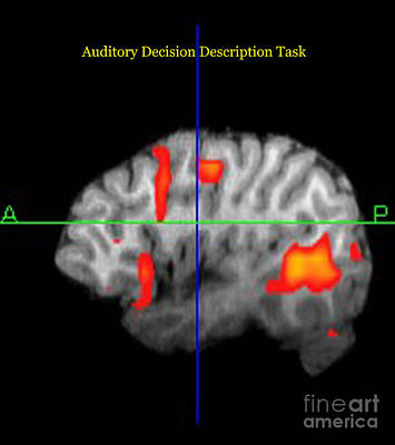 Brain Activity During Language Task, 1 Art Print