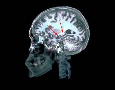 Brain In Alzheimer's Disease Art Print by Zephyr