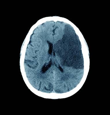 Brain In Stroke Art Print by Zephyr