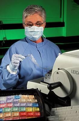 Brain Tissue Prion Research Art Print