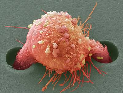 Breast Cancer Cell Art Print by Steve Gschmeissner