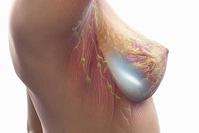 Breast Augmentation Photograph - Breast Implant by Science Picture Co