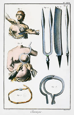 Breast Surgery Art Print by Granger