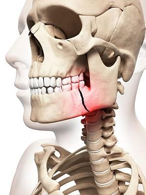 Broken Jaw Bone Art Print
