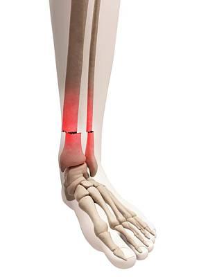 Broken Leg Bone Art Print