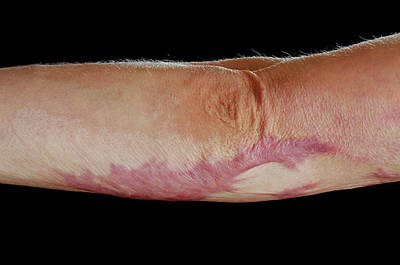 Dermatology Photograph - Burns Scar by Mid Essex Hospital Services Nhs Trust