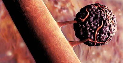 Photograph - Cancer Cell, Illustration by Spencer Sutton