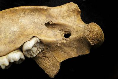 Cave Bear Photograph - Cave Bear Injury by Science Photo Library