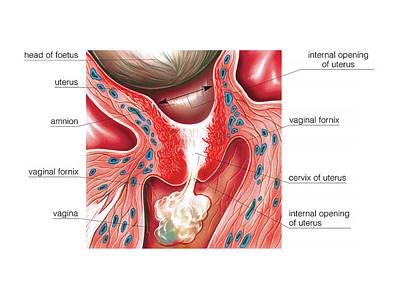 Cervix In Pregnancy Art Print by Asklepios Medical Atlas