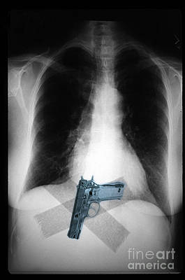 Chest X-ray Showing Hidden Gun Art Print