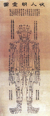 Photograph - Chinese Acupuncture Chart, 1906 by Science Source