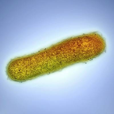Infectious Photograph - Cholera Bacterium by Ami Images