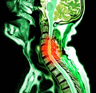 Disc Photograph - Compressed Spinal Cord by Du Cane Medical Imaging Ltd