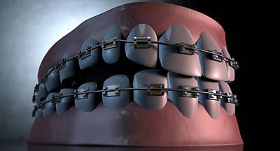 Creepy Teeth With Braces Art Print by Allan Swart