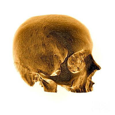 Reconstruction Photograph - Ct Reconstruction Of Skull by Living Art Enterprises, LLC
