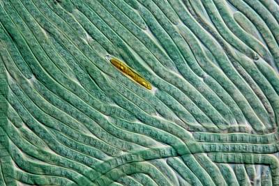 Unicellular Photograph - Cyanobacteria And Diatom by Gerd Guenther