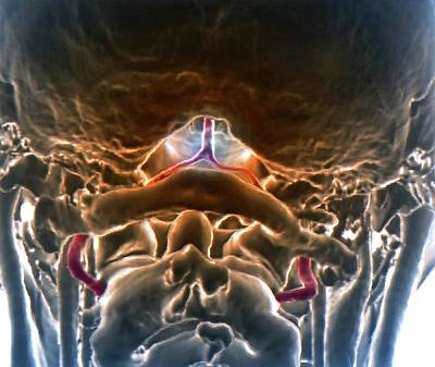 48 Photograph - Decreased Brain Blood Flow by Zephyr