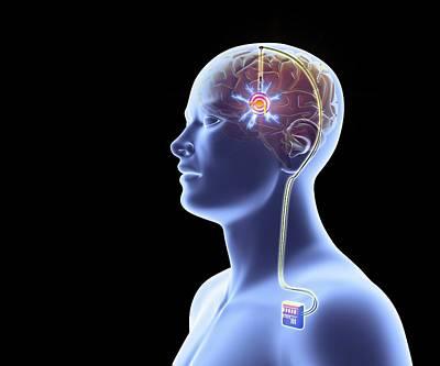 Basal Photograph - Deep Brain Stimulation by Alfred Pasieka
