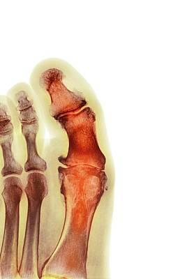 Degenerative Foot Deformation Art Print