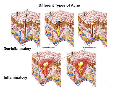 Physiology Digital Art - Different Types Of Acne by Stocktrek Images