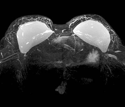 Breast Implants Photograph - Double Mastectomy Breast Implants, Mri by Science Photo Library