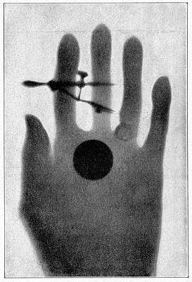 X-rays Of Photograph - Female Hand by Cci Archives