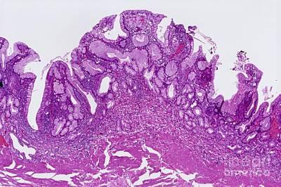 Gastritis, Light Micrograph Art Print