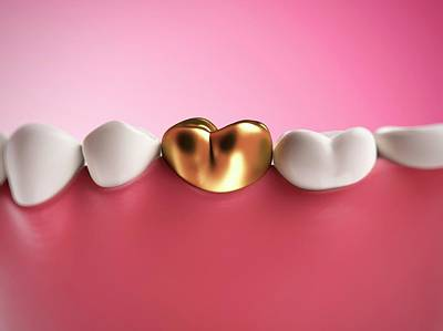 Gold Filling In Tooth Art Print