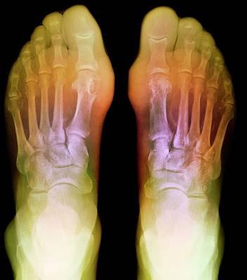 Human Joint Photograph - Gout by Du Cane Medical Imaging Ltd