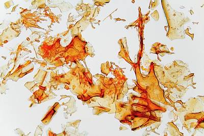 Haemoglobin Crystals Art Print by Antonio Romero