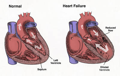 Info Graphic Photograph - Healthy Heart Vs. Heart Failure by Spencer Sutton