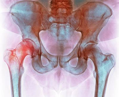 Hip Before Hip Replacement Surgery Art Print by Dr P. Marazzi