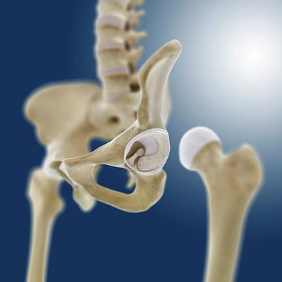 Articulate Photograph - Hip Socket Anatomy by Springer Medizin