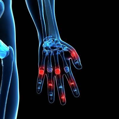 Biomedical Illustration Photograph - Human Finger Joints by Sebastian Kaulitzki