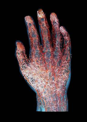 Casting Photograph - Human Hand Blood Vessels by Zephyr