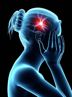 Biomedical Illustration Photograph - Human Headache by Sebastian Kaulitzki