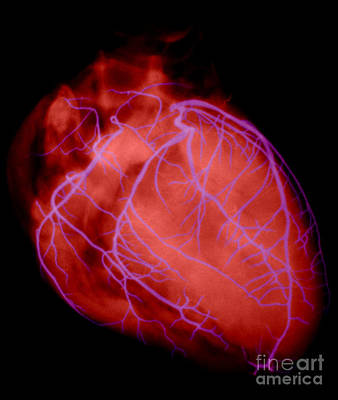 Photograph - Human Heart by David Bassett