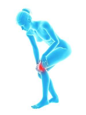 Biomedical Illustration Photograph - Human Knee Pain by Sebastian Kaulitzki