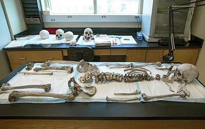 Human Remains In A Forensics Laboratory Art Print
