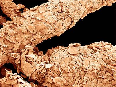 Photograph - Human Skin Flakes, Sem by Scimat