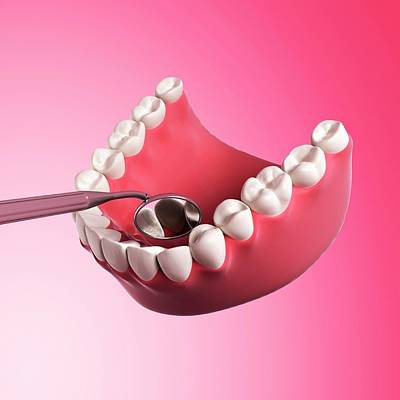 Biomedical Illustration Photograph - Human Teeth by Sebastian Kaulitzki