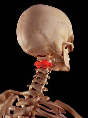 Human Upper Neck Pain Art Print by Sebastian Kaulitzki/science Photo Library