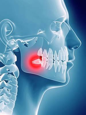 Impact Photograph - Impacted Wisdom Tooth by Sebastian Kaulitzki
