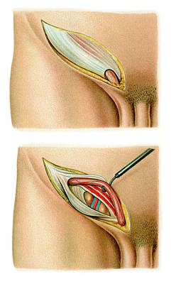Inguinal Hernia Surgery Art Print by Science Photo Library