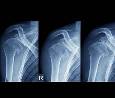 X-ray Photograph - Injured Shoulder by Zephyr