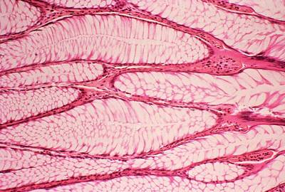 Intestinal Polyp Art Print by Cnri