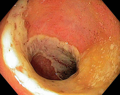 Inflamed Wall Photograph - Ischaemic Colitis by Gastrolab