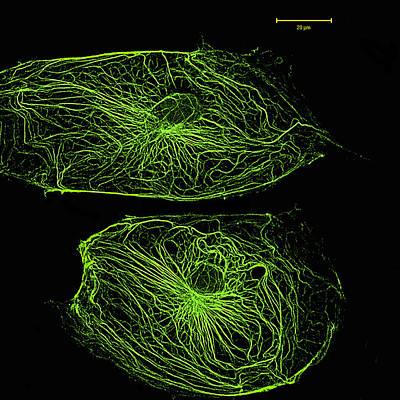 Keratinocytes, Lm Art Print