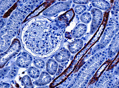 Kidney Cortex, Lm Art Print